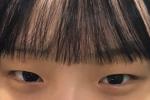 눈매교정 3개월차 후기!!