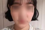 [광대][앞턱재수술][풀페이스지방이식][이중턱흡입] 한달됐어요